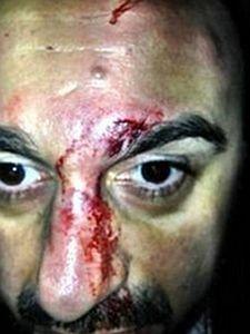 Tasso Stafilidis ver�ffentlichte dieses Foto seiner Gesichtsverletzungen