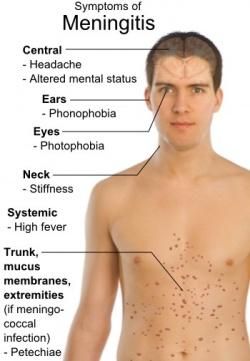 Auf m�gliche Symptome von Meningitis sollte man achten, da sich die Krankreit schnell verschlimmert und zum Tod f�hren kann