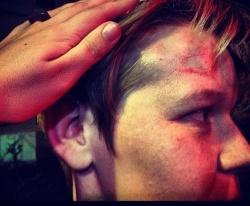 Bei dem �berfall auf den Club wurden mehrere Personen verletzt - Quelle: Elena Kostyuchenko