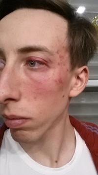 Sven Wille behauptet, von Polizeibeamten geschlagen worden zu sein. �rztliche Hilfe sei ihm verweigert worden - Quelle: Facebook